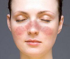 Systemischer Lupus Erythematodes